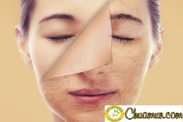 Phương pháp trị nám da đơn giản dành cho phái nữ