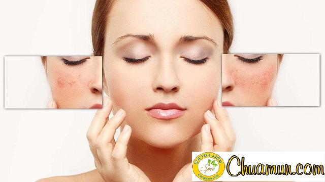 Phân biệt nám da và tàn nhang giống và khác nhau ở điểm nào